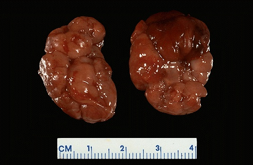 These large, lobulated adrenals arose in a case of Beckwith-Wiedemann syndrome.