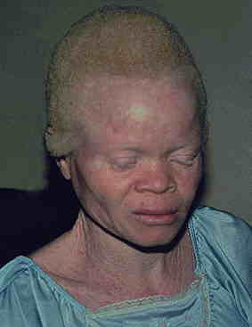 Dec see albinism consists of photographer. Production that prevents